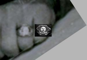 Кольца вервольф?