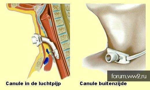 Медицинский инструмент Рейха - прибор для трахеостомии